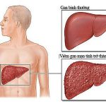 5 phương pháp phòng bệnh viêm gan C hiệu quả