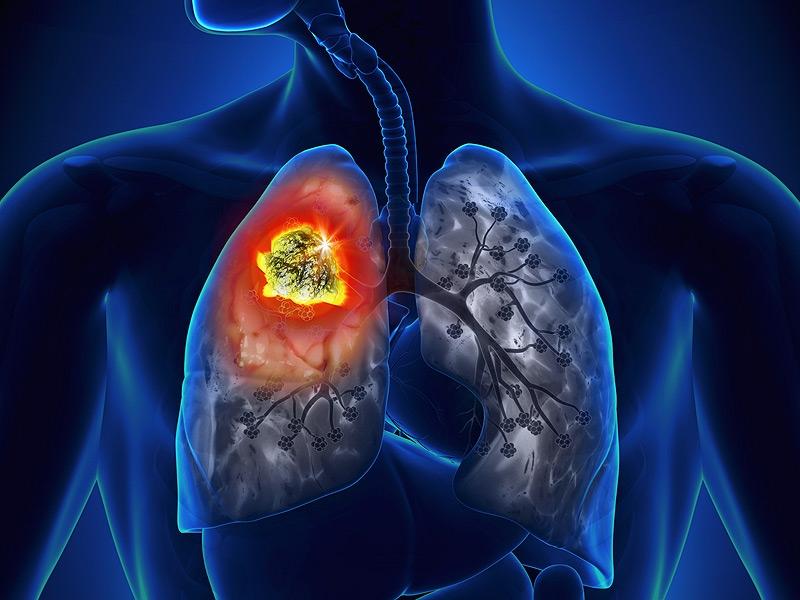 Ung thư biểu mô tế bào vảy của phổi