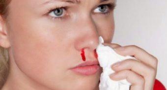 Cẩn trọng với 10 dấu hiệu của ung thư mũi xoang