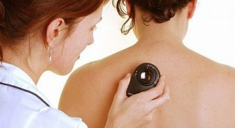 Cảnh báo những dấu hiệu của bệnh ung thư da thường gặp