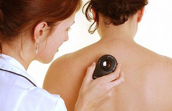 Nên đến gặp bác sĩ nếu nghi ngờ bạn đang có các dấu hiệu của bệnh ung thư da