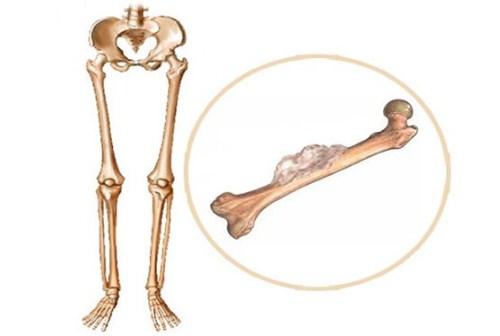 Cảnh giác với ung thư xương qua những dấu hiệu bất thường