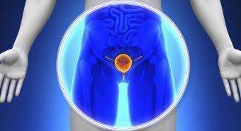 Chẩn đoán ung thư tiền liệt tuyến chính xác bằng tinh dịch