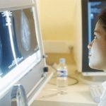 Điều trị ung thư hạch bằng miễn dịch phóng xạ