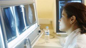 Sử dụng miễn dịch phóng xạ giúp chữa trị ung thư hạch.