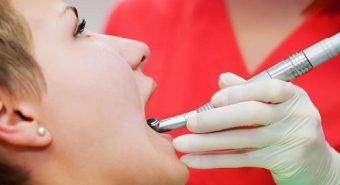 Có cần thiết phải khám răng miệng trước khi phẫu thuật ung thư lưỡi?