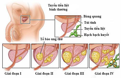 Rất khó để phân biệt dấu hiệu ung thư tuyến tiền liệt với các bệnh lý khác