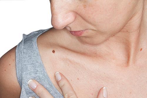 Sự tập trung của các tế bào sắc tố da sẫm cũng là dấu hiệu ung thư da