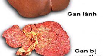 Độ cứng ở gan giúp tiên lượng được nguy cơ ung thư biểu mô tế bào gan