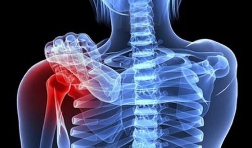 Giảm chi phí điều trị ung thư xương nhờ vật liệu sinh học