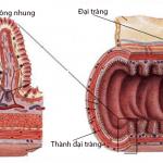 Điều trị viêm đại tràng với phương pháp của người Nhật