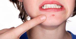 Phân biệt ung thư da với mụn nhọt thông thường để tránh điều trị sai bệnh.