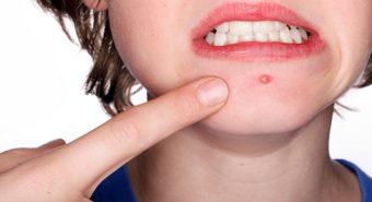 Làm sao để phân biệt ung thư da với mụn nhọt thông thường?