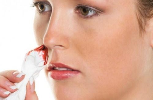 Những dấu hiệu bệnh ung thư mũi bạn nhất định phải biết