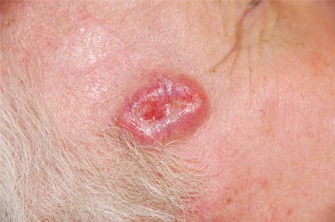 Có thể nhận biết ung thư biểu mô tế bào da thông qua các vết loét dai dẳng