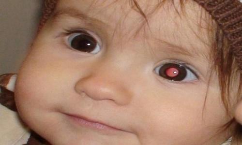 Trẻ em là đối tượng dễ mắc bệnh u nguyên bào võng mạc