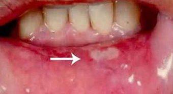 Tìm hiểu ung thư biểu mô tế bào vùng miệng