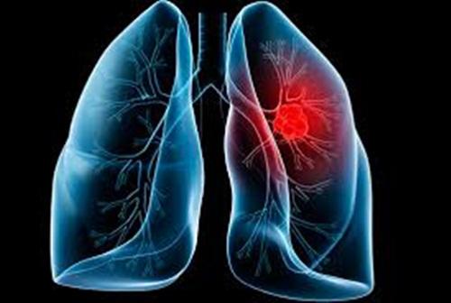 Bệnh ung thư biểu mô phế quản – phế nang rất dễ mắc phải