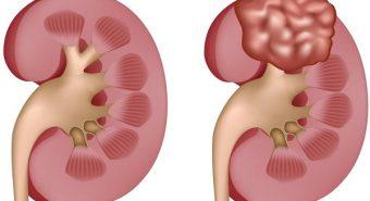 Ung thư biểu mô tế bào thận khó phát hiện cần cẩn trọng
