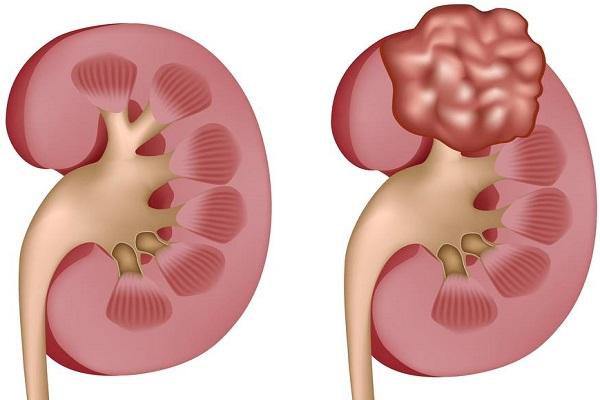 Ung thư biểu mô tế bào thận rất khó phát hiện ở giai đoạn đầu