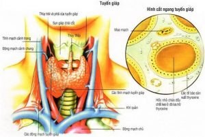 Bệnh bướu giáp nhân thường dạng khối nằm ở tuyến giáp