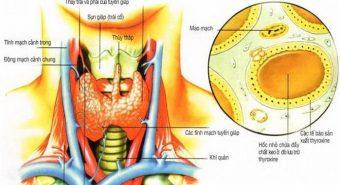 Bạn biết gì về bướu giáp nhân và những cách chữa trị mới?