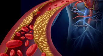Báo động máu nhiễm mỡ ngày càng trẻ hóa