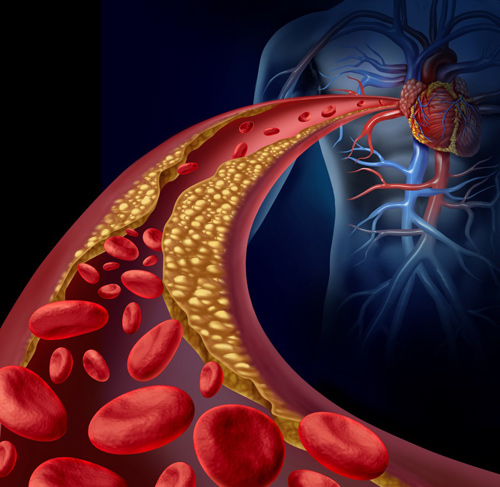Hình ảnh máu nhiễm mỡ