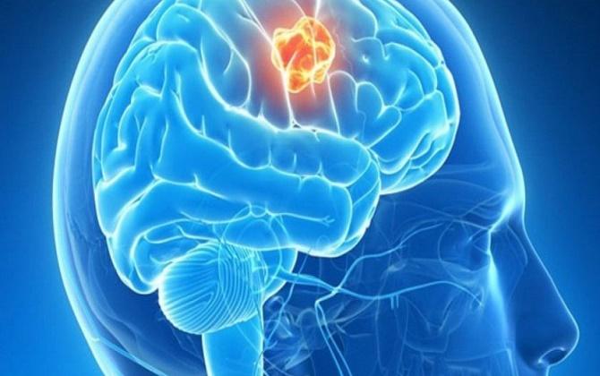 Bệnh nhân ung thư não sẽ có các dấu hiệu bất thường ở hệ thần kinh não