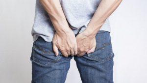 Bệnh trĩ tái phát sau điều trị sẽ trở nên nặng hơn