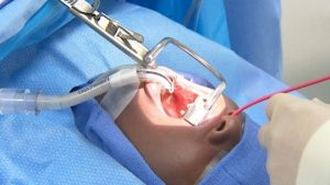 Tử vong là biến chứng của cắt amidan vô cùng nguy hiểm