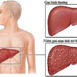 Cẩn trọng với những biến chứng viêm gan B mạn tính nguy hiểm