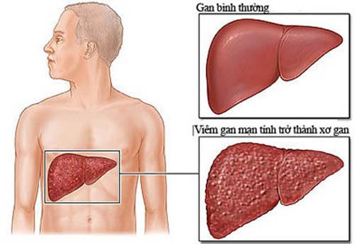 Biến chứng viêm gan B mạn tính