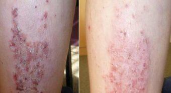 Cẩn trọng khi điều trị viêm da cơ địa mạn tính