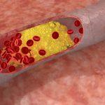 Các loại thực phẩm dành cho người bị máu nhiễm mỡ