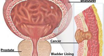 Các nguyên nhân ung thư bàng quang cần lưu ý