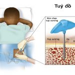 Các phương pháp chẩn đoán phát hiện bệnh đa u tủy xương