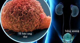 Các phương pháp điều trị ung thư bàng quang ở từng giai đoạn