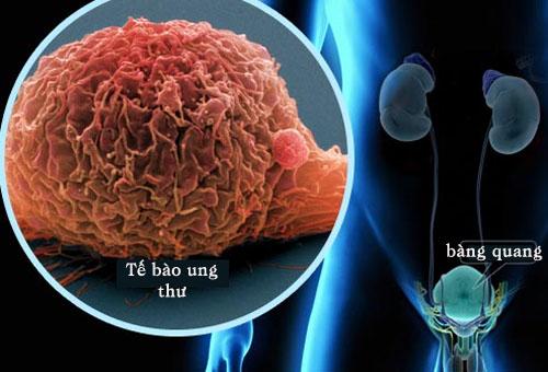 Hình ảnh tế bào ung thư bàng quang