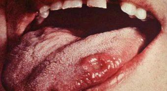 Các xét nghiệm chẩn đoán bệnh ung thư lưỡi
