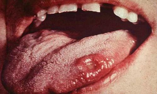 Không dễ để chẩn đoán bệnh ung thư lưỡi qua biểu hiện lâm sàng