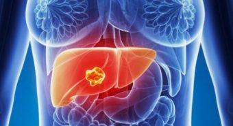 Cách điều trị ung thư biểu mô tế bào gan