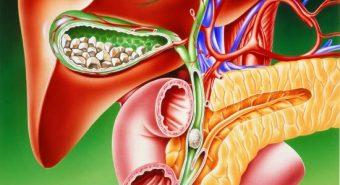Cách nhận biết dấu hiệu ung thư túi mật