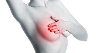 Cách điều trị ung thư vú bằng phương pháp mới