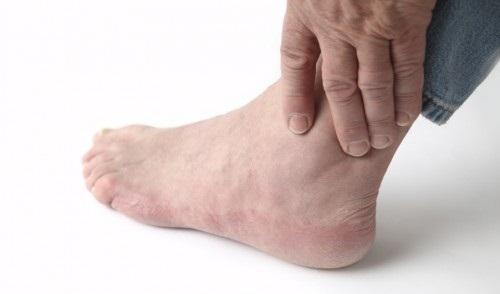 Hãy cẩn trọng với dấu hiệu sưng bàn chân