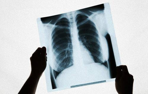 Câu hỏi trắc nghiệm kiểm tra nguy cơ mắc ung thư phổi
