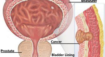 Chẩn đoán ung thư bàng quang và định hướng điều trị