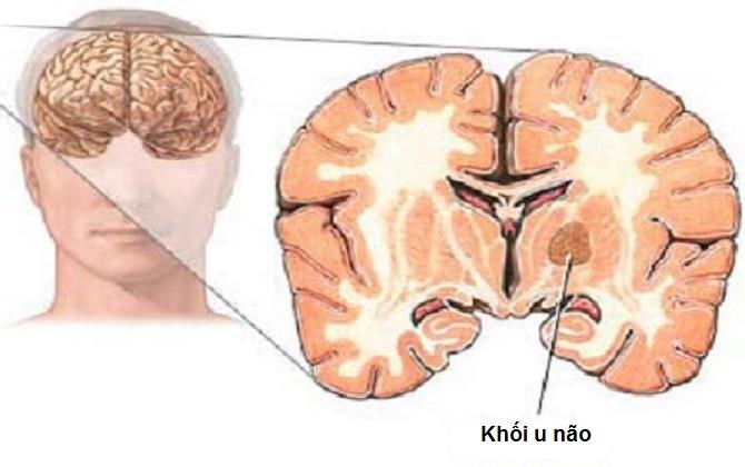 Chẩn đoán u não sớm sẽ tốt cho việc điều trị bệnh