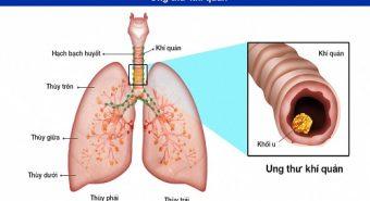 Chữa hẹp khí quản khi mắc bệnh ung thư khí quản