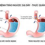 Điều trị trào ngược dạ dày thực quản bằng mẹo